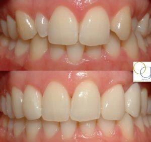 Caso Multidisciplicar clínica dental madrid